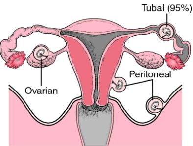 sarcina extrauterina