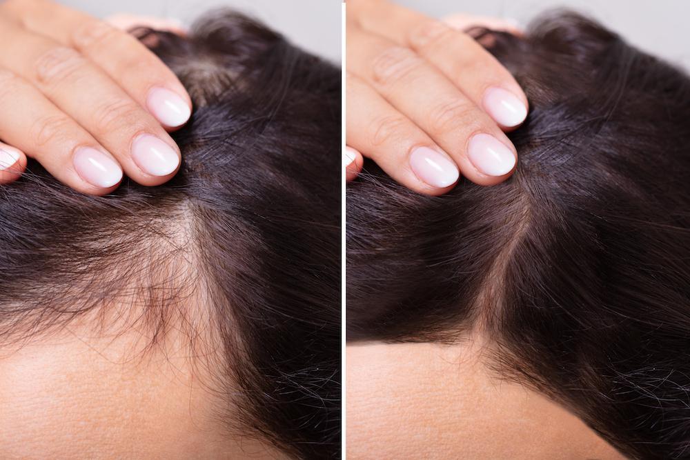 Tratamentul cu PRP (plasmă imbogățită cu trombocite) pentru stimularea creșterii părului