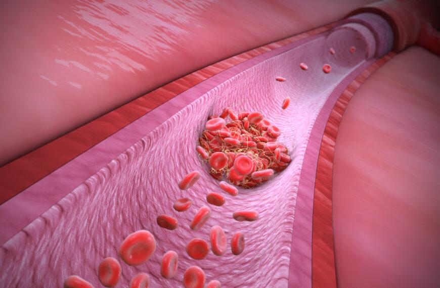 Trombofilie